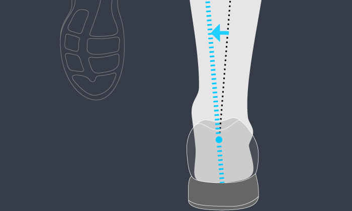 Pronation Guide: Finding the Right